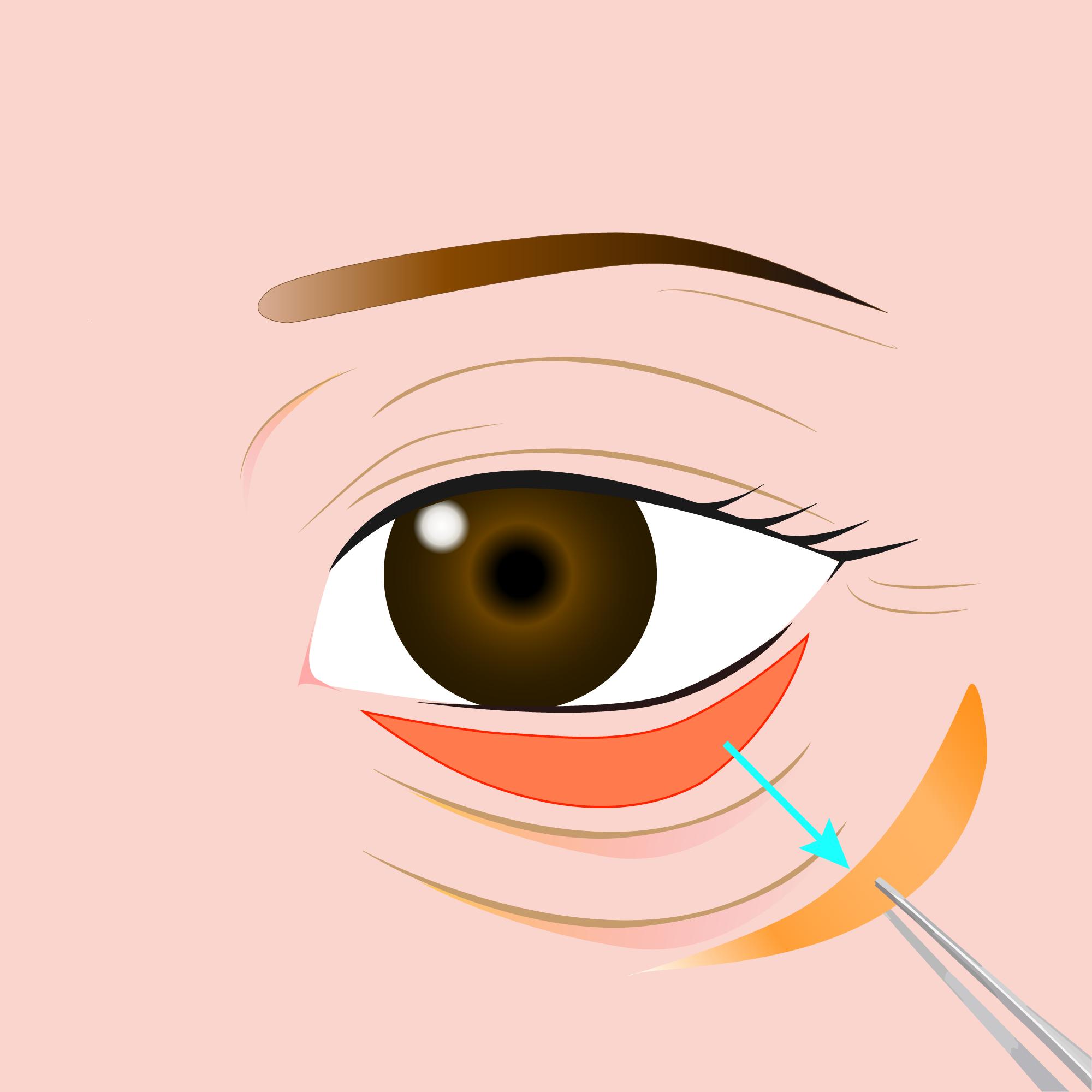 まぶたのたるみ・眼瞼下垂 (下まぶた)