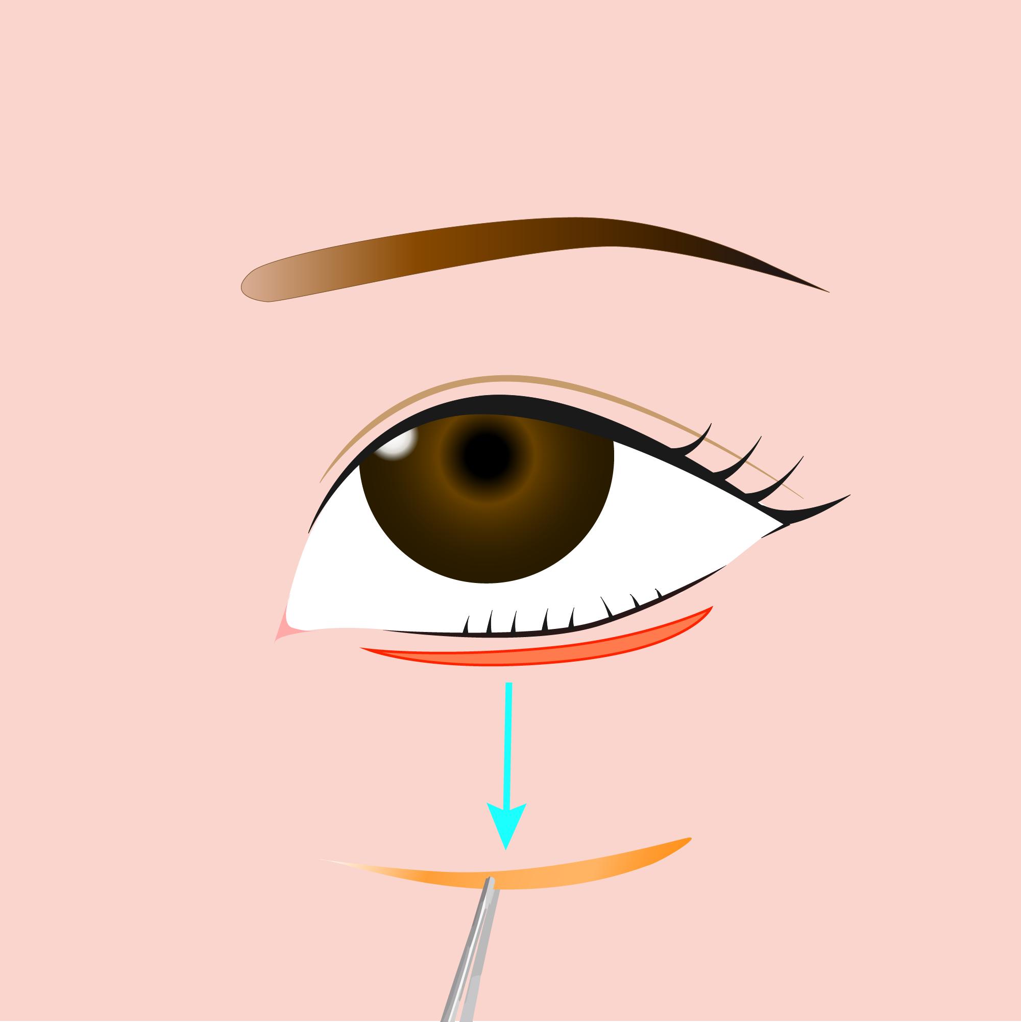 下眼瞼逆さまつ毛修正