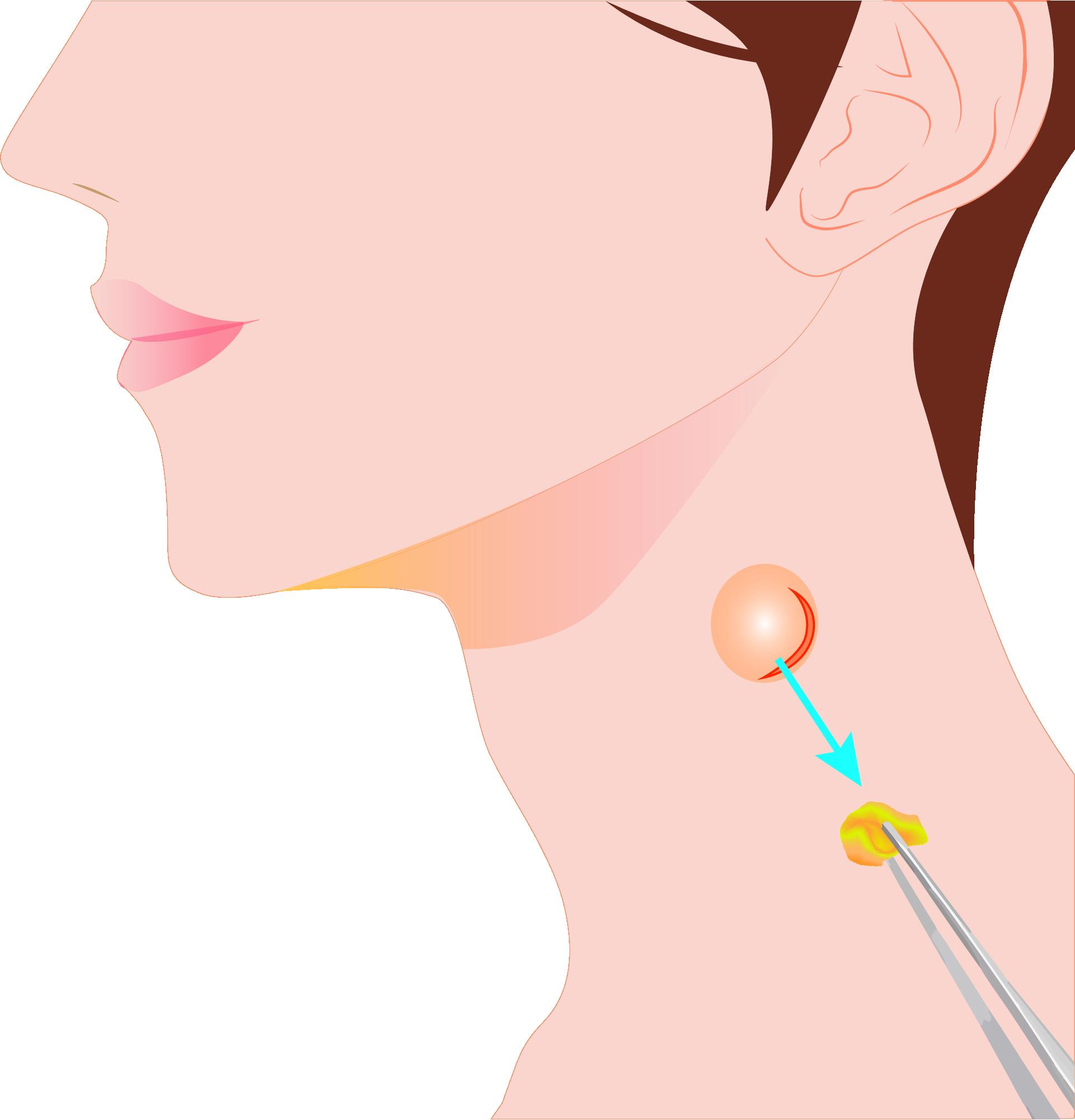 皮下腫瘍(粉瘤、石灰化上皮腫、脂肪腫など)