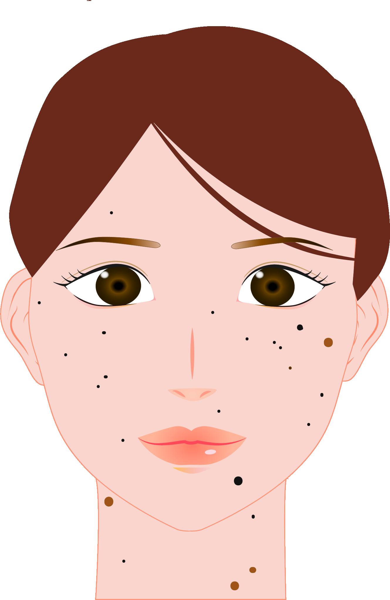 皮膚腫瘍(ほくろ、イボなど)