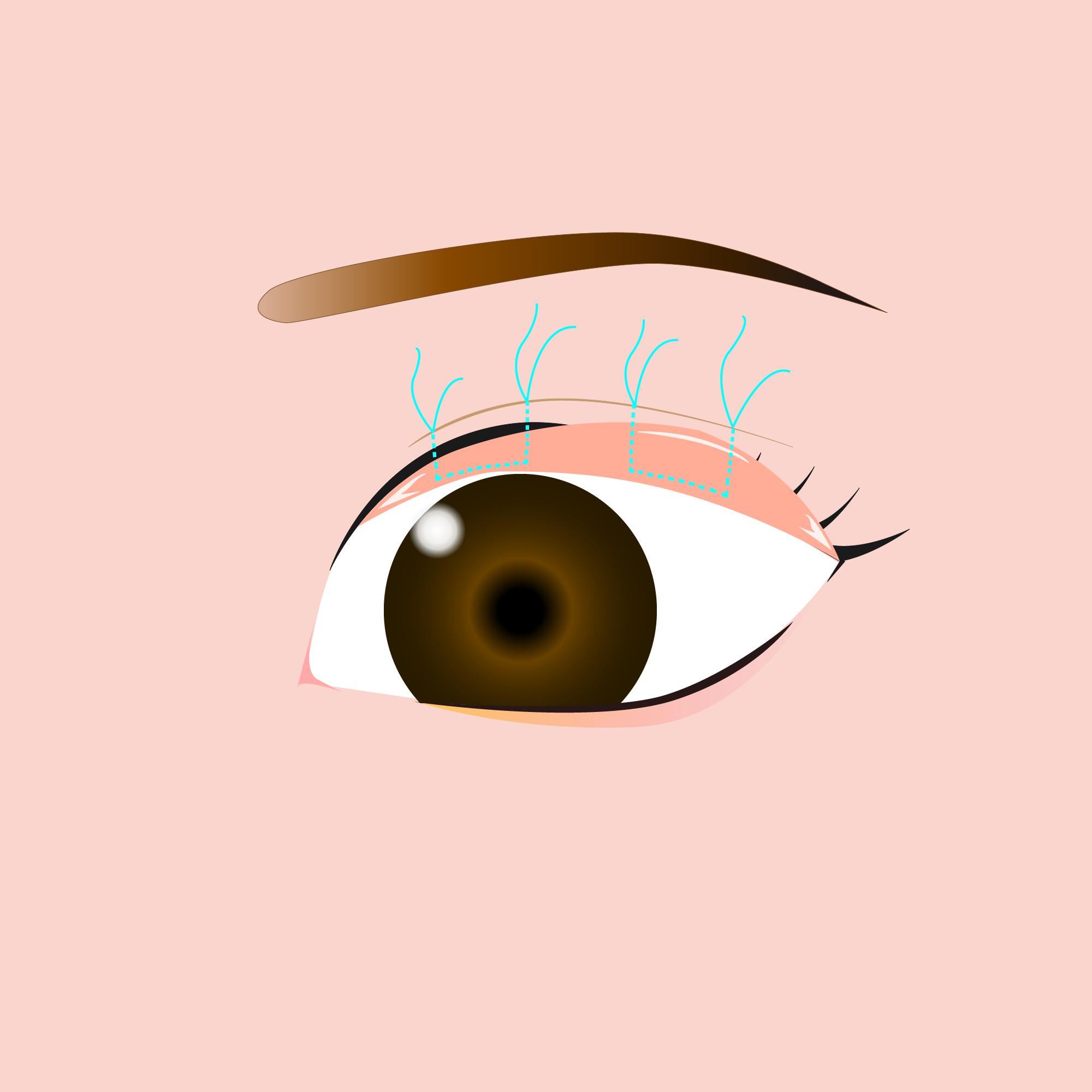 まぶたのたるみ・眼瞼下垂 (上まぶた)