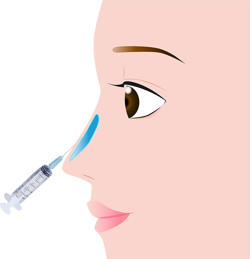 鼻 鼻筋・隆鼻ヒアルロン酸注入 /Gメッシュ