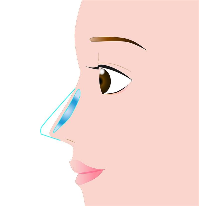 鼻 シリコンプロテーゼ/プロテーゼ抜去