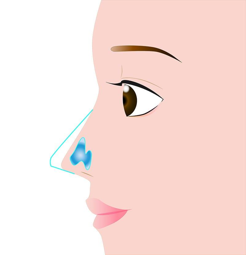 鼻 鼻尖縮小/耳介軟骨移植