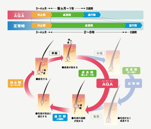 AGA時のヘアサイクル1