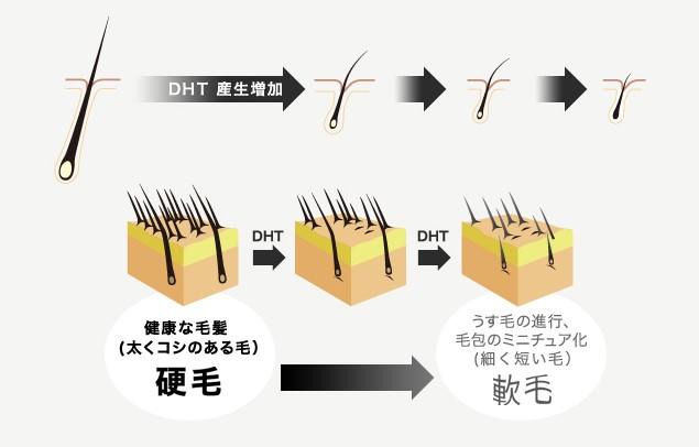AGA時のヘアサイクル2